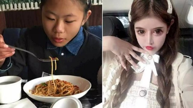 Dramatic Changes Of A 16-Year-Old Schoolgirl After Plastic Surgeries