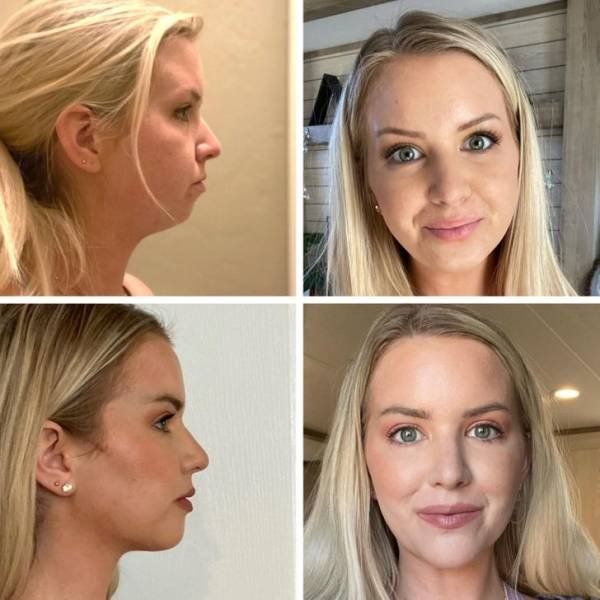 People Show Their Changes After Plastic Surgeries