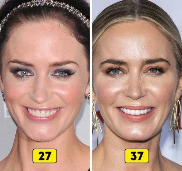 Celebrity Changes In The Past 10 Years