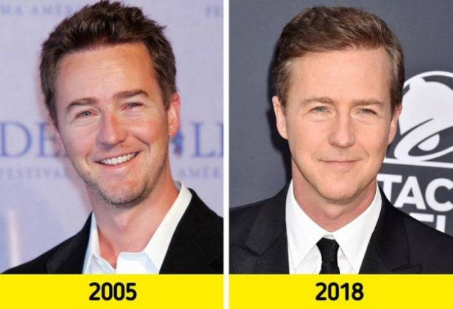 Celebrities Who Refuse Aging