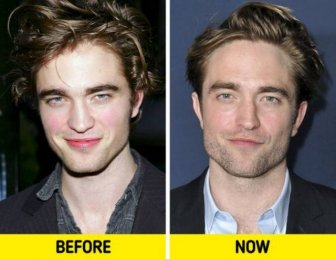 Celebrities In 2000's And Now