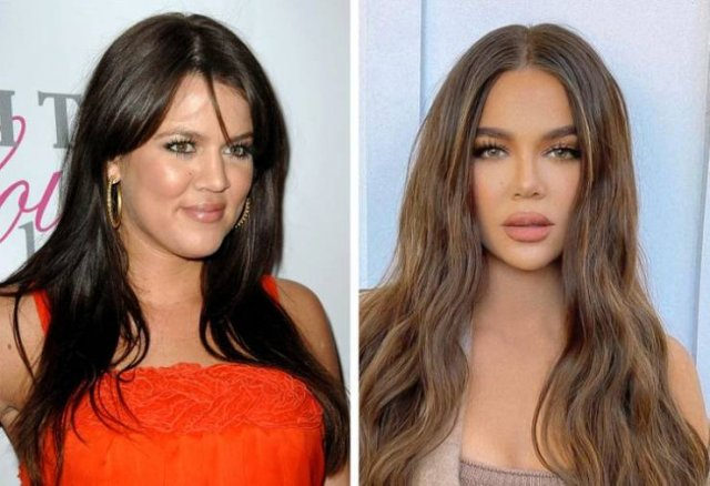 Celebrities In Early 2000's And Now