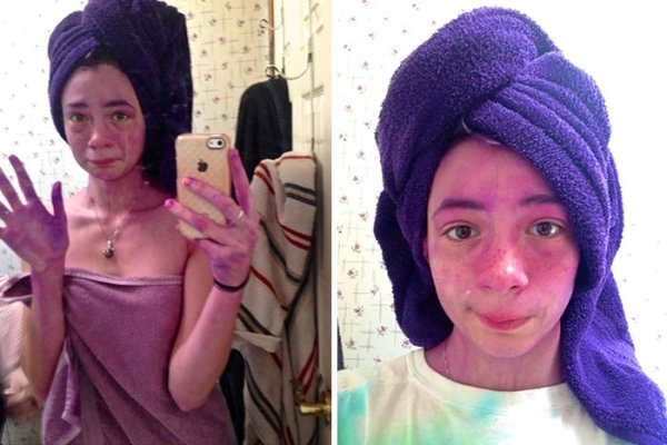 When Hair Dyeing Went Wrong