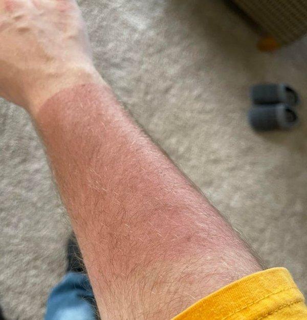 Tan Lines Fails
