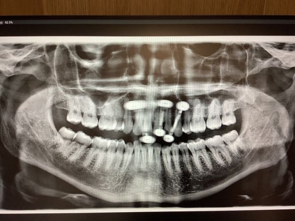 Things Unger X-Rays