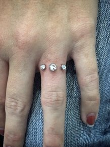 Rocks Implanted Into Fingers Instead Of Traditional Wedding Rings
